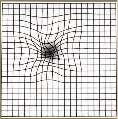 amsler-grid2