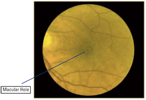 macular-hole2