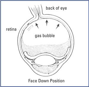 macular-procedure