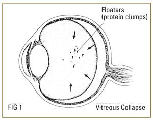 retinal-detach-floaters