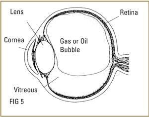 vitrectomy-surgery